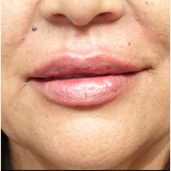 45-54 year old woman treated with Restylane Silk after 3280248