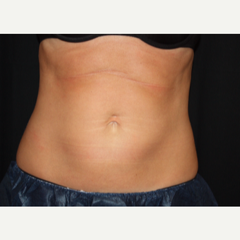 35-44 year old woman treated with CoolSculpting after 3417820