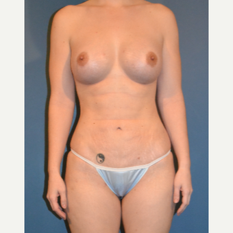 35-44 year old woman treated with Breast Fat Transfer after 3408224