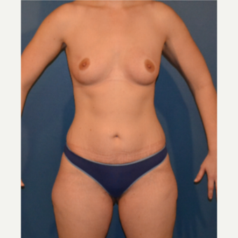 35-44 year old woman treated with Breast Fat Transfer before 3408224