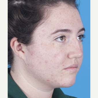 17 or under year old woman treated with Rhinoplasty before 3051576