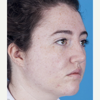 17 or under year old woman treated with Rhinoplasty after 3051576