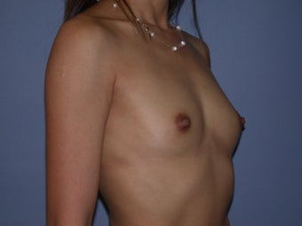 Breast Augmentation on 37-year-old Woman 1144150