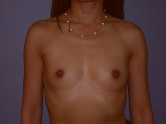 Breast Augmentation on 37-year-old Woman before 1144150