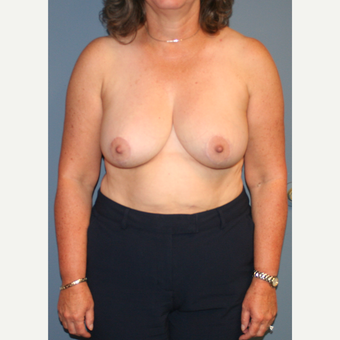 45-54 year old woman treated with Breast Reduction after 3453995