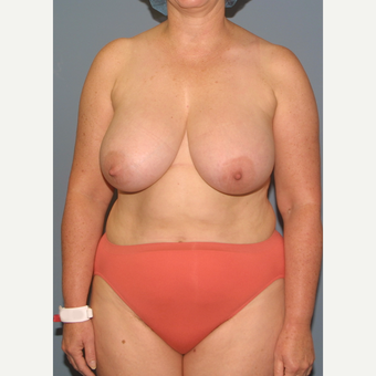 45-54 year old woman treated with Breast Reduction before 3453995