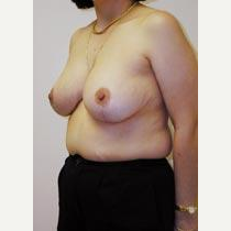 Breast Reduction after 2720755