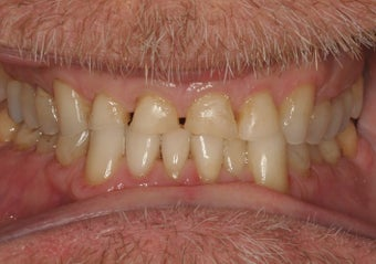 55-64 year old man treated with Smile Makeover