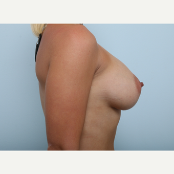 Breast Augmentation after 3345182