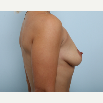 Breast Augmentation before 3345182