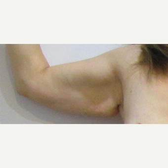 48 year old woman treated with  a limited scar Arm Lift before 3432339