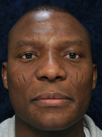 40 Year Old Male With Facial Scars before 1132320