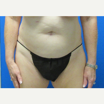 Tummy Tuck before 3703796