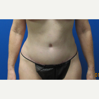 Tummy Tuck after 3703796