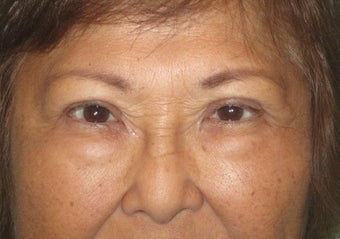 64 year old female who desired double lid surgery after 811454