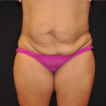 Tummy Tuck before 3012663