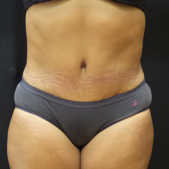 Tummy Tuck after 3012663