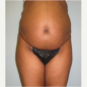 45 year old woman treated with Tummy Tuck before 3680183
