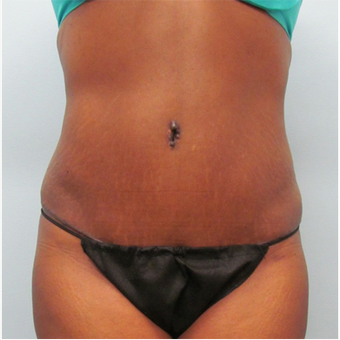 45 year old woman treated with Tummy Tuck after 3680183