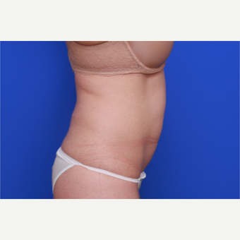36- year old woman treated with SculpSure before 3033189