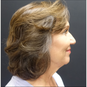 65-74 year old woman treated with Facelift before 3244842