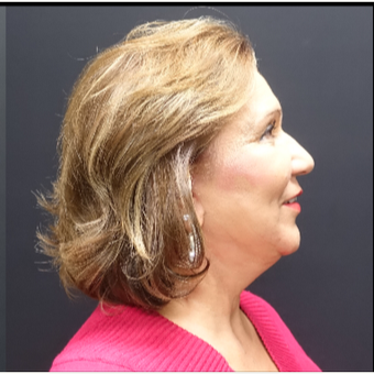 65-74 year old woman treated with Facelift after 3244842