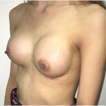 Breast Augmentation in a small volume thin lady after 3012965