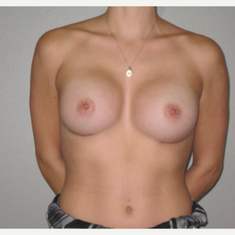 25-34 year old woman treated with Breast Implants after 3666677