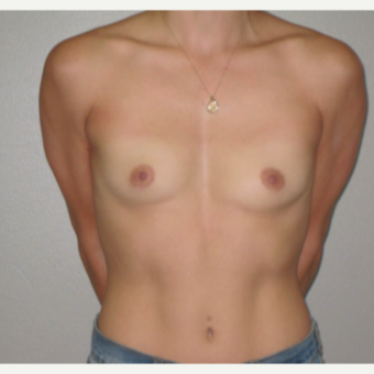 25-34 year old woman treated with Breast Implants before 3666677
