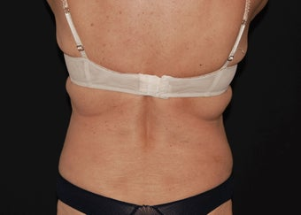 CoolSculpting 5 before 941170