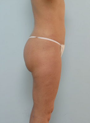 Liposuction 917799