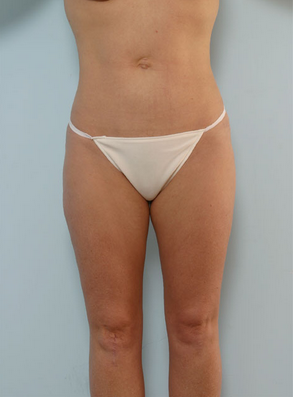 Liposuction after 917799