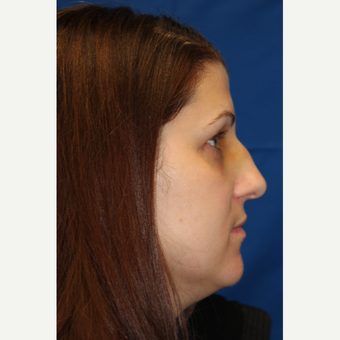 35-44 year old woman treated with Rhinoplasty before 3623268
