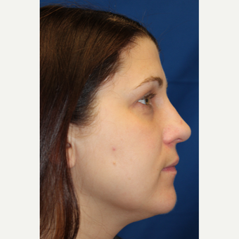 35-44 year old woman treated with Rhinoplasty after 3623268