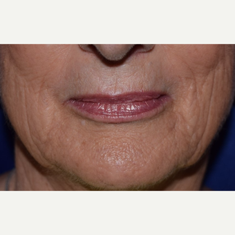 65-74 year old woman treated with Voluma for lower face lines before 3047949