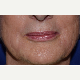 65-74 year old woman treated with Voluma for lower face lines after 3047949