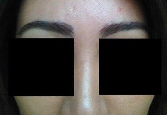 Before and after excision of eyebrow scars with subsequent eyebrow transplant of 700 grafts after 1141894