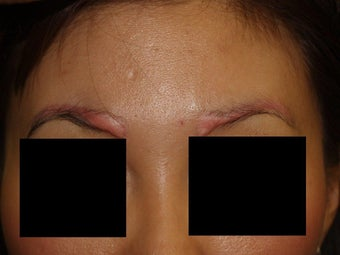 Before and after excision of eyebrow scars with subsequent eyebrow transplant of 700 grafts before 1141894