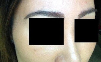 Before and after excision of eyebrow scars with subsequent eyebrow transplant of 700 grafts 1141894