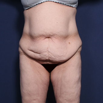 45-54 year old woman treated with Tummy Tuck (view 1 of 2) before 3033272