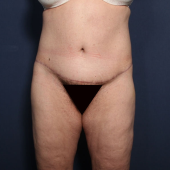 45-54 year old woman treated with Tummy Tuck (view 1 of 2) after 3033272