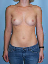 Breast Augmentation Surgery before 97429