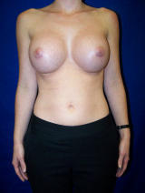 Breast Augmentation Surgery after 97429