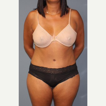 35-44 year old woman treated with Tummy Tuck after 3502242