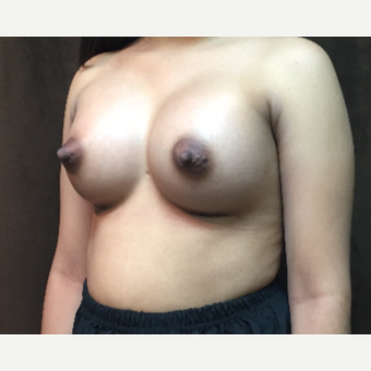 25-34 year old woman treated with Breast Augmentation after 3049436