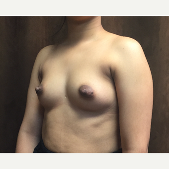 25-34 year old woman treated with Breast Augmentation before 3049436