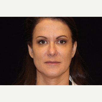 45-54 year old woman treated with Liquid Facelift after 3502624