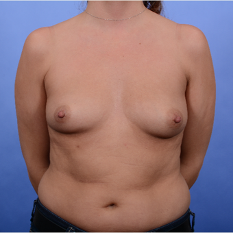 Breast Augmentation (465gm) before 3052386