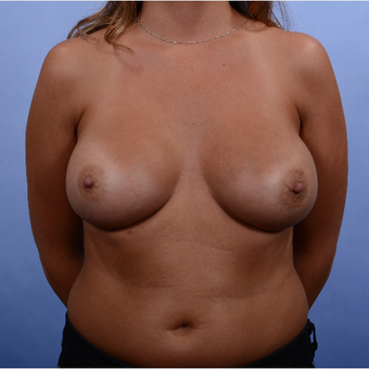 Breast Augmentation (465gm) after 3052386