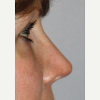 35-44 year old woman treated with Revision Rhinoplasty after 2984631